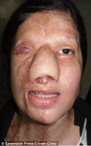 29歲正妹獲聘當空姐「好友超級嫉妒」在她臉上潑硫酸,她「鼻子被融掉」最後用大腿肉重建鼻子!