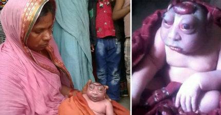 印度新生兒患先天罕病頭上一坨「母親拒絕哺乳」,當地人紛跑去看「相信神猴轉世」...