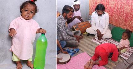 21歲的他「只有6月大嬰兒的身高體重」,民眾發現「他是印度神轉世」許願都能成真! (10張圖)