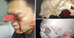 中國「淡定哥」臉插水果刀爆血狂流照樣「乖乖排隊」就診!「根本小傷」清洗傷口後直接回家。