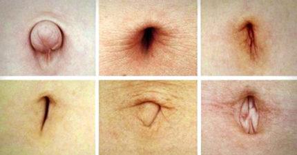 從「肚臍的形狀」可以看出一個人的「健康狀況和性格」!#9這種形狀的人最容易失戀!