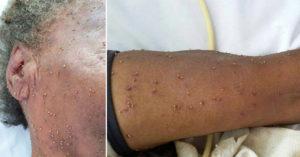 84歲老婦遭蜜蜂「叮超過500下」致死,路過民眾看到的畫面:最可怕的噩夢...(非趣味)