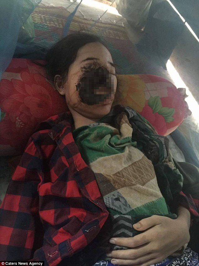 清秀少女3個月前去牙醫,現在「右臉整個被吃掉」且過程完全清醒!