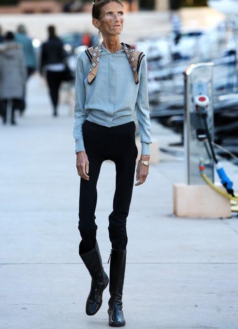 12張直擊「全球最瘦25KG骷髏女模」過分減肥悲慘照,#8以前真的好美!(影片)