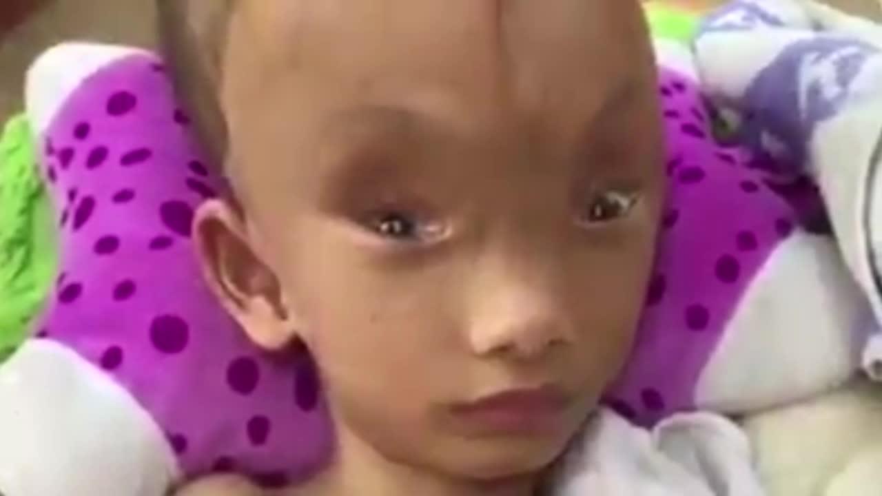 6歲男孩「頭顱上出現10公分裂縫」父親嚇跑,祖母心碎:「可以把整隻手放進去...」(影片)