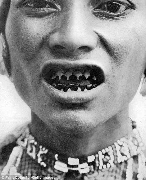 A member of the Bagobo people from coastal Mindanao in the Philippines displays filed teeth in a photo taken circa 1910