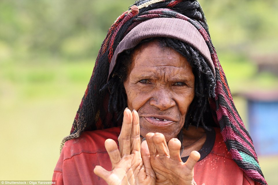 In Indonesia's Dani Village, New Guinea, some women like this one cut off the tips of their fingers when a relative dies