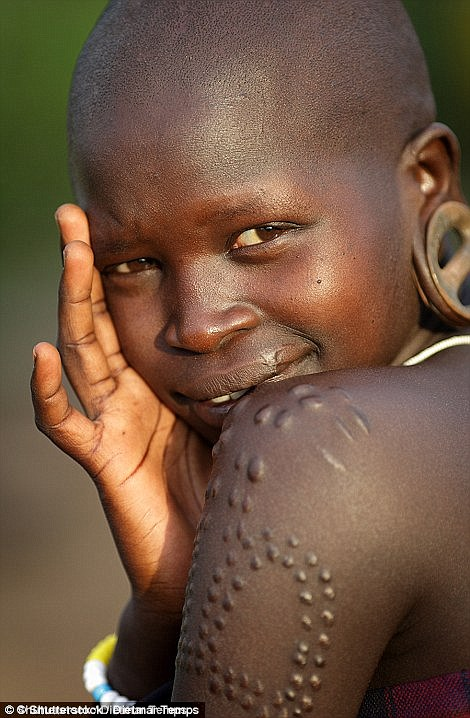 A young woman inin South Omo, Ethiopia, with scars on her arm