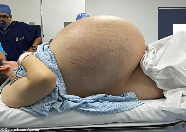 24歲女子下腹驚現「10個嬰兒重的巨球」史上最大,切出來醫生抱在手中太恐怖!
