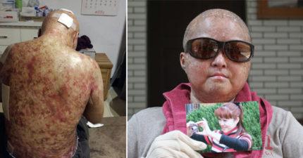 美容師患罕病手術後「迅速從43歲老到70歲」,男友淚訴「這間醫院誤診」讓她痛苦過世。