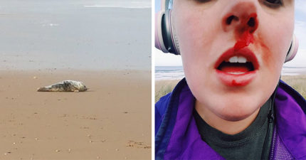 女子海邊發現「屁孩集體暴打虐待小海豹」衝上前阻止卻被K到狂流血!「我不擔心我自己」網友感動推爆!