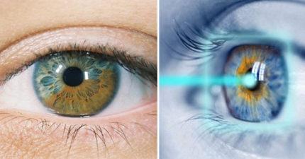其實你我的眼睛都跟白人一樣是藍色的!這種手術讓你黑色變藍色!