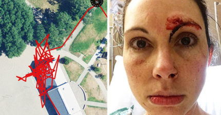 她被性侵犯襲擊健身追蹤器記錄「整段打架路程」,她看起來被打很慘不過「性侵犯被扁後模樣」更慘到爆!