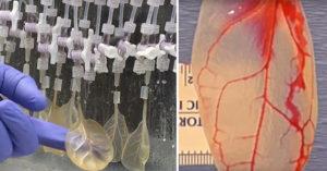 科學家研發出讓「波菜長成心臟」!以後不用再怕「心臟病」!