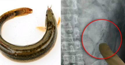 男子把2條活泥鰍塞到肛門裡,畫面讓醫生都嚇壞「腸子摧毀再往上游一點就死定了」。