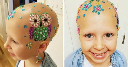 7歲小女孩患了嚴重「脫髮症」後不放棄,在學校贏得「最棒髮型」!第二款「戰鬥模式」超帥!