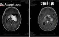 連美國政府都正式承認「大麻可殺死癌細胞」!女子患腦癌到了第8個月的時候「畫面驚人」!