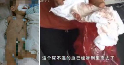 1歲大女嬰慘遭50歲男性侵「尿布都是血,下體須縫合」!事後女嬰手上總拿著糖果媽媽超崩潰!