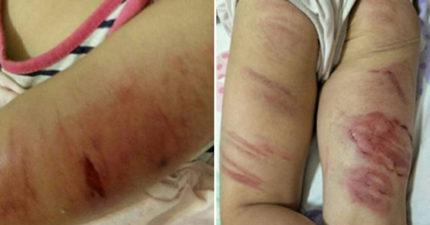 狠父拿烤肉鐵夾虐4歲女「皮開肉綻全身血痕」!正義使者:下次絕對不饒你!