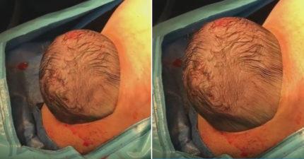 小寶寶的頭一半這樣「凸出來」,最新剖腹生產「比異形電影恐怖」! (影片)