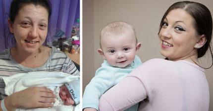因為疤痕太多!26歲媽媽「流產16次」終於成功生下小孩!