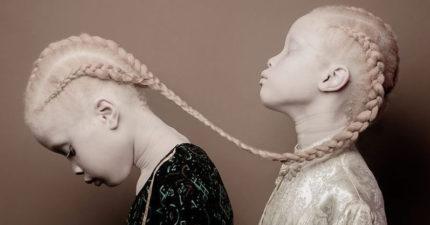 12張掀起全新時尚潮流的「白化症雙胞胎」夢幻模特照,#9黑皮膚姐姐美到不行!