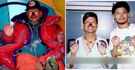 登山專家高銘和「成功攻頂聖母峰」後遇難,撐過一夜手腳變「黑色玻璃杯」連鼻子都切除。