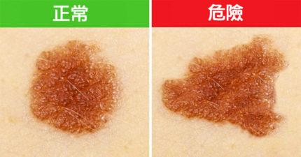 5種看起來正常但該馬上去看醫生的超危險「致命皮膚癌」異常胎記!