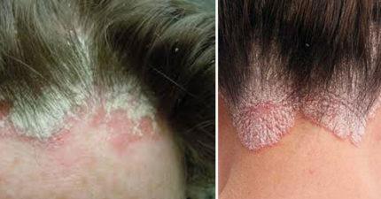 7種因「濕頭髮睡覺所造成像慢性自殺般」的恐怖疾病。#7有可能癱瘓致死!
