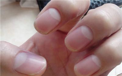 指甲上的「小白色彎月」可以看出生育能力!「這個尺寸」的人最會生小孩!