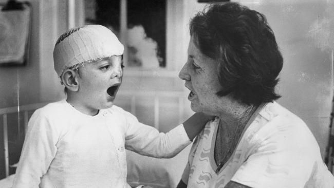 「醜到像條魚!」他一出生醜到被母親詛咒去死,45年後「驚人模樣」努力拼出成就「老婆超美」!(影片)