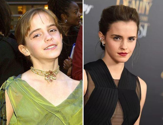 13張《哈利波特》演員長大後「轉變比艾瑪還大」變天菜對比照。#10她比艾瑪華森更正!