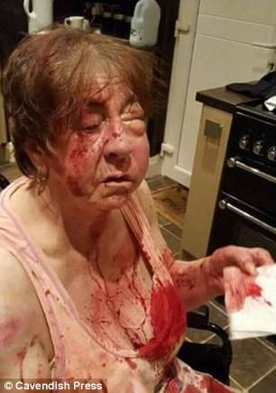 因為不肖兒子,64歲婦人在家被兩名男子用「棒球棒痛毆」進醫院!