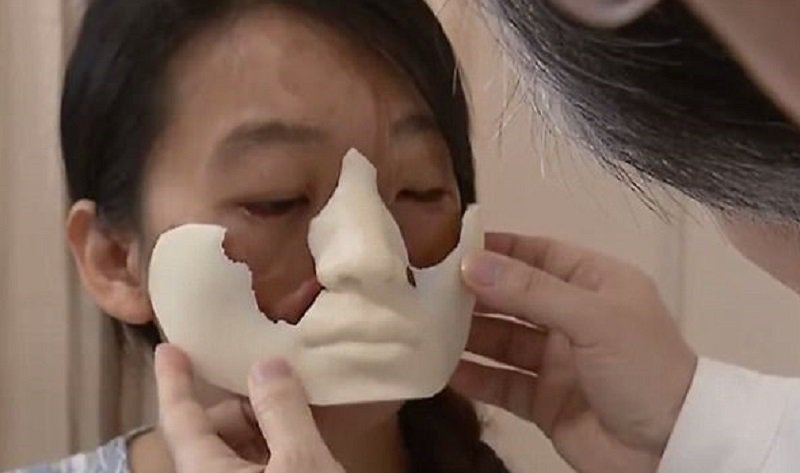 把乳房移植到臉上!女子只能能用這方法才能有個完整的臉!