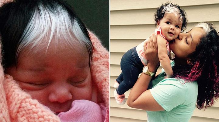 「白馬王子」帥氣寶寶一出生「頭髮就像白雪一樣」!醫生:「這不是白化病!」