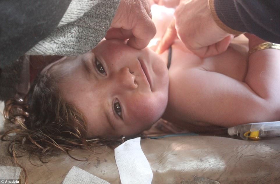 The government denies the use of chemical weapons and has in turn accused rebels of using banned weapons. Pictured above, a wounded kid receives treatment following the attach
