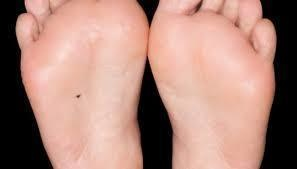 A mole at the bottom of the feet symbolizes someone who needs to travel.