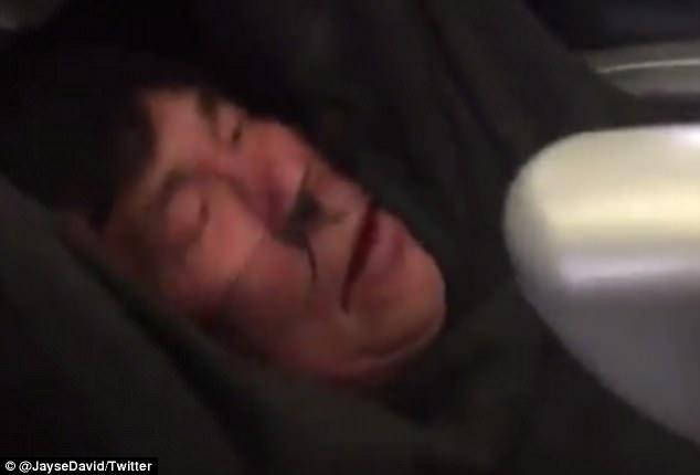 他哭喊:殺了我吧!亞裔男醫生遭暴力拖下機,「濺血暈過去」被當狗!(影片)