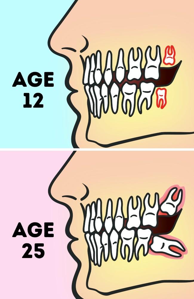 智齒應該拔掉嗎?牙醫指出有「這種情況」的人千萬不要拔!
