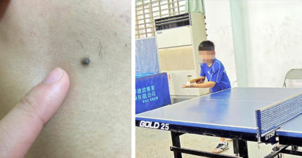 12歲童慘被「逼互含GG」含到龜頭炎!變態教練死不承認但「一顆鳥痣」露餡重判7年!