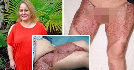 44歲婦雷射「除比基尼線」,2天後「大腿黑死潰爛」嚴重到昏迷9天差點要截肢保命!(圖片慎入)