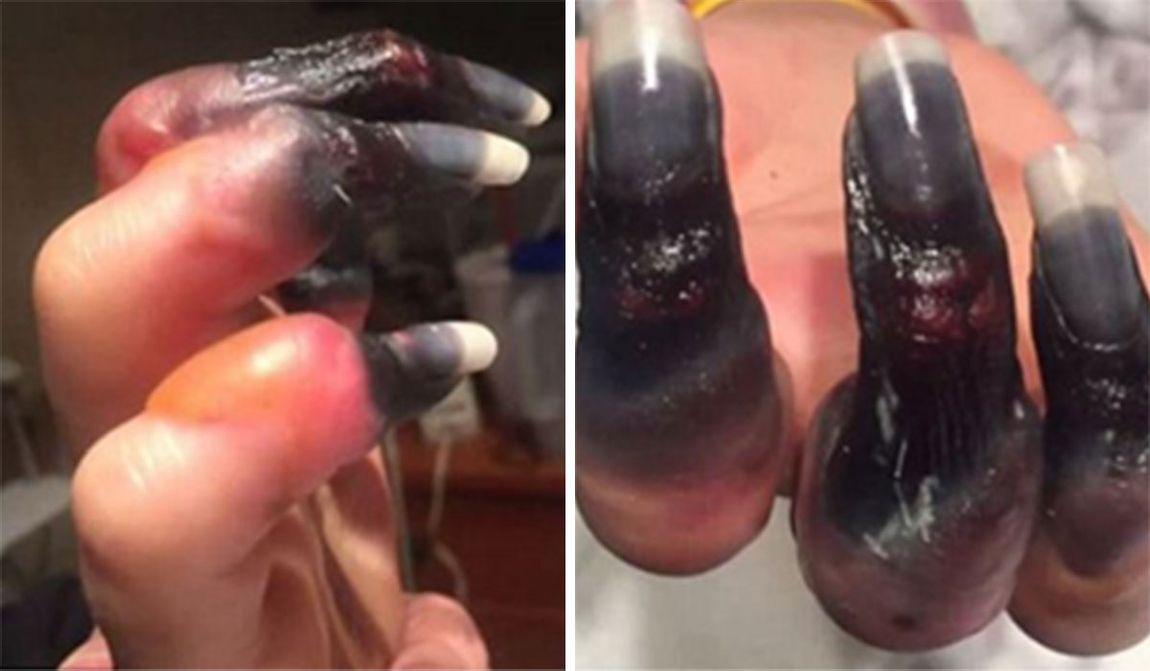 女子以為只是「喉嚨發炎」沒有想太多,手指變黑「壞死」還差點死掉!