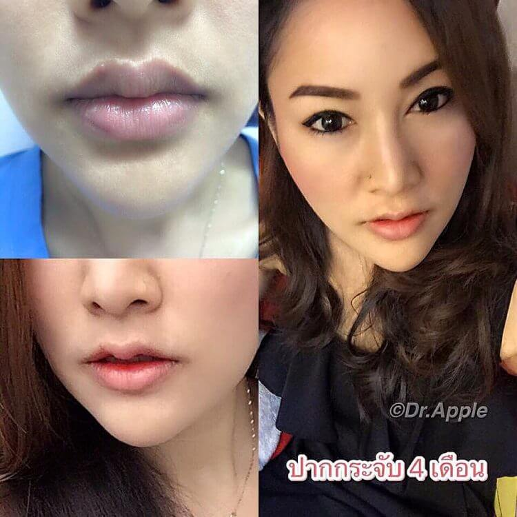 泰國女生瘋「下凸魔唇」整形潮失控!「痊癒後」超古怪歪嘴整形醫生都頭痛!