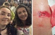 母女分享演唱會恐攻「驚悚重傷畫面」釘子插進肉裡,這張「傷者夾克被3枚釘子貫穿」照片太震撼!