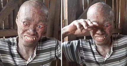 「鬼男」患怪病「從小全身皮膚燒壞」遭生母遺棄,快失去視力「但最痛的不是身上的疾病」。