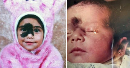 她臉上有「巨大黑色胎記」被人罵她醜,長大後她「美到像個性超模」把嗆她的人臉打腫!(11張)