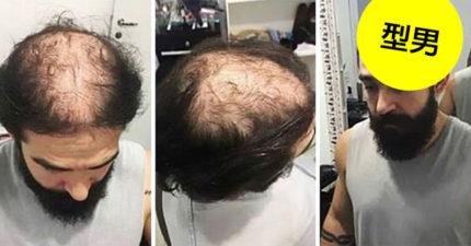 以後不用植髮了!「這個髮型」可以讓「禿頭」一秒變型男!