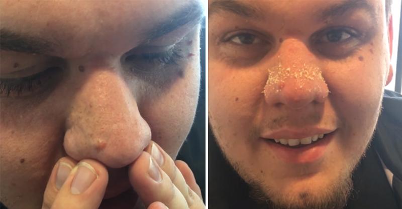 男子用力擠壓自己鼻子「上百條白色」跑出來 美妝公司最不想讓你看到的絕技!