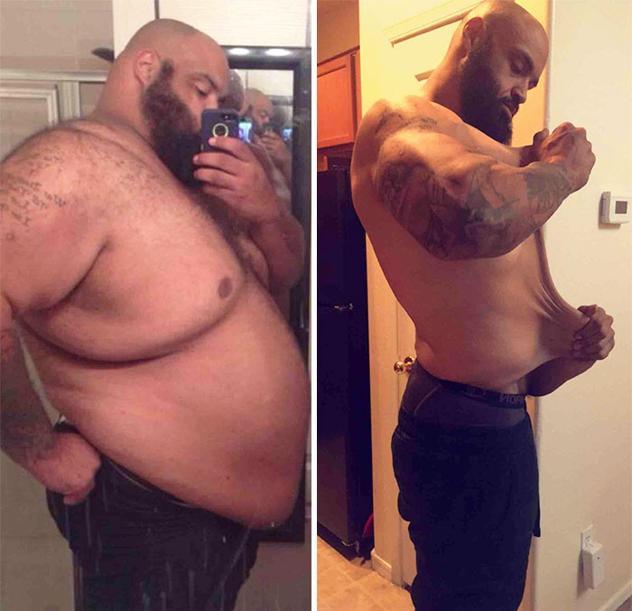 When Told He Would Die If He Didn't Lose Weight, Pat Lost 325 Lbs