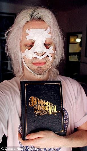 他花75萬把自己整成「《魔戒》精靈」 「穿上精靈服」後美到像天使下凡!